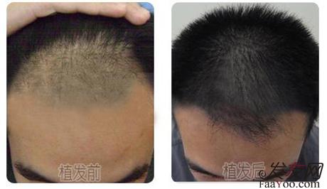 目前国际上主要采用两种技术一种是无痕植发,另一种是有痕植发.