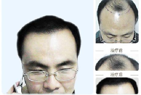 疤痕性植发手术费用相对无痕植发较低,对于经济条件不是很好的发友来