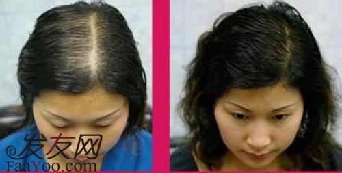 在乎的女性可以采用头发加密手术来达到浓密的效果