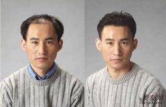 织发补发有什么危害吗,织发补发真的很安全吗?