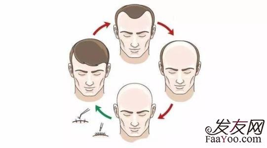 非典是由什么引起的_是什么原因引起的脂溢性脱发?_发友网