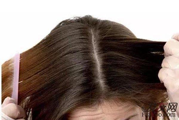 植发术后清洗头发一定要注意了