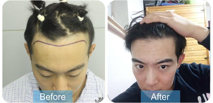 发际线植发2000个毛囊,术后一年帅出天际!