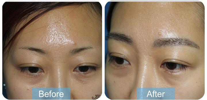 植眉效果分享,眉毛种植术后6个月效果