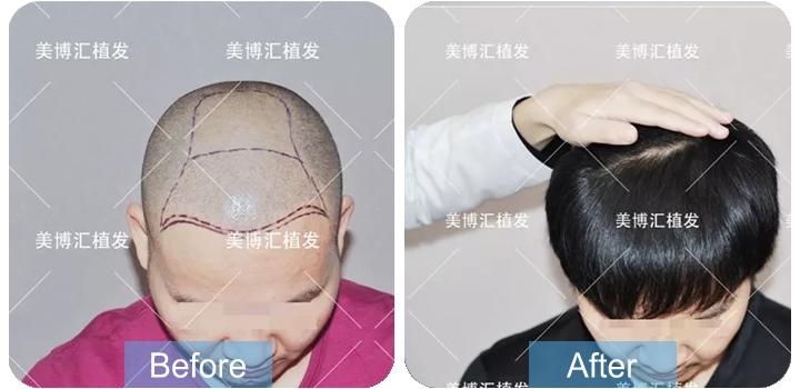 我的植发日记,广州植发8个月效果如何?