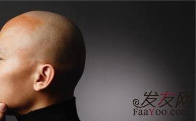 脂溢性脱发怎么拯救?