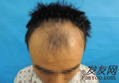 男性脱发之雄脱是什么?怎么解决?