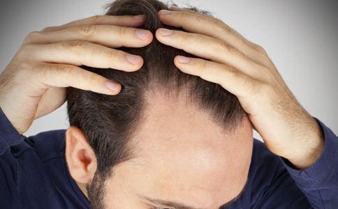 为什么男性比女性更容易脱发?