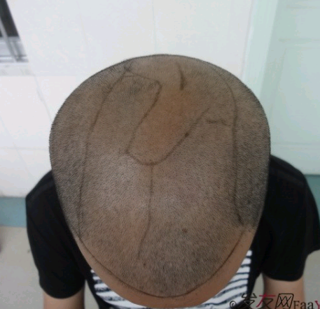 头顶植发案例