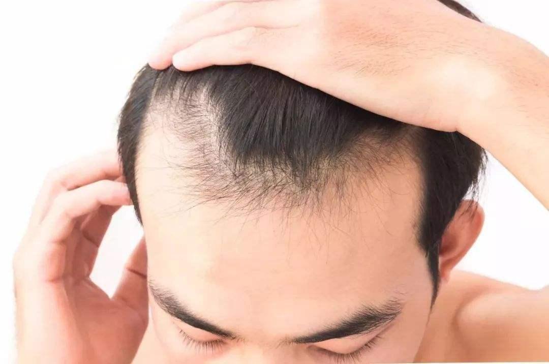 关于遗传性脱发的问题