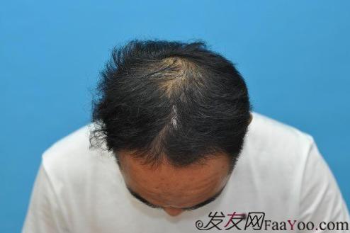 加密4000单位广州六元植发活动,越来越好了