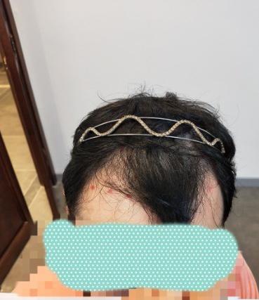植发好医生:沈阳牛大夫植发让我做了一直想做的事情