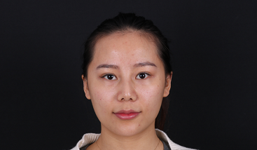 我在北京植了发,谢谢发友网给我的帮助,分享植发日记