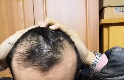 天津新发现植发3000单位,我来说说有头发的感受