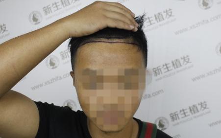 南京新生植发,早发现早治疗跟脱发说拜拜