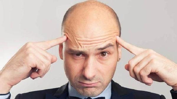 溢脂性脱发的表现和治疗方法?