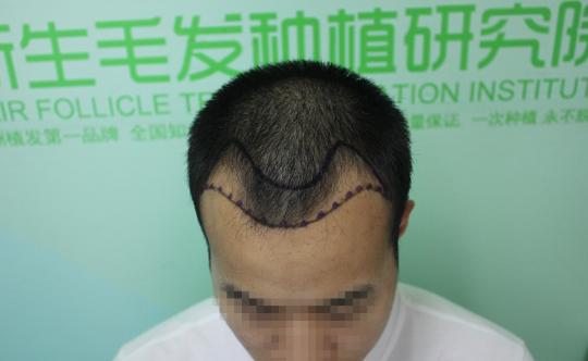 南京新生植发案例,植完发后彻底大变样