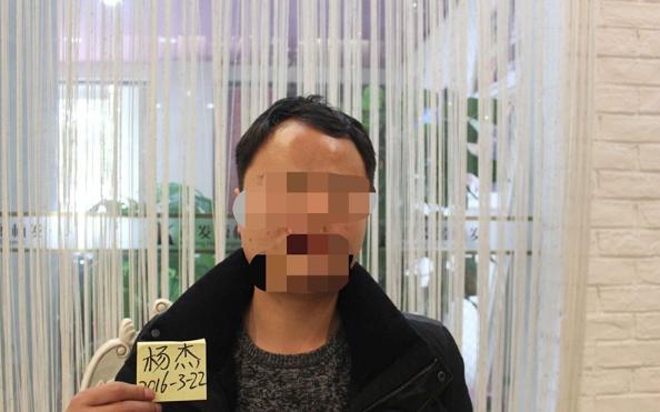 我在上海大麦微针植了发,看看我的心路历程