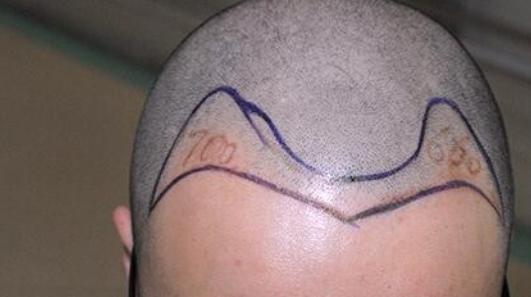 成都雍禾发际线加密手术1000+单位,9个月明显增多