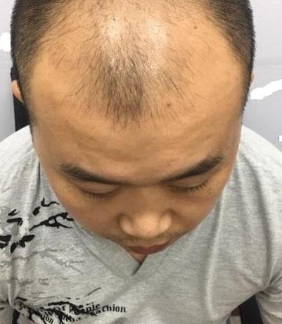 重庆头顶大面积植发,看五个月后的效果我满意了