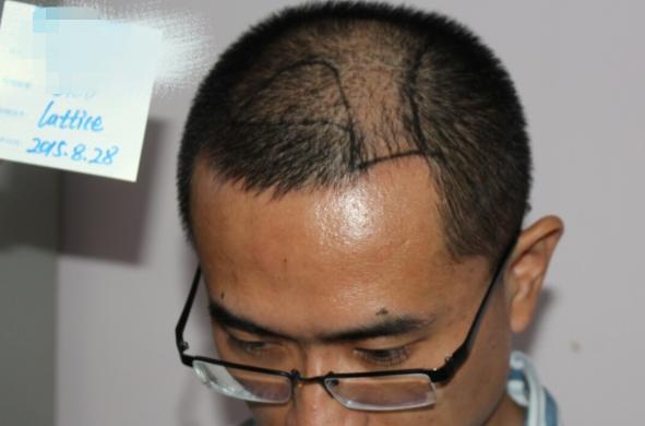 来自一位男士的真实案例分享,脱发六年,植发后半年感觉整个人都变了