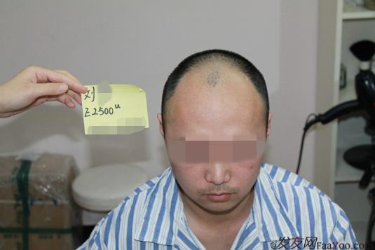 上海雍禾植发2500单位,一下子年轻了10岁,想要植发的朋友可以看看
