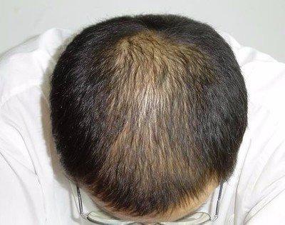 天津植发效果好的医院有哪些,费用是多少?