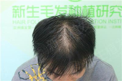 杭州植发贵吗,有哪些效果好的医院推荐?