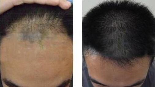 武汉新生前额加密植发2000单位,进来看看我的植发效果怎么样