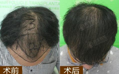 苏州哪家植发医院靠谱?在苏州新生植发了3000毛囊单位