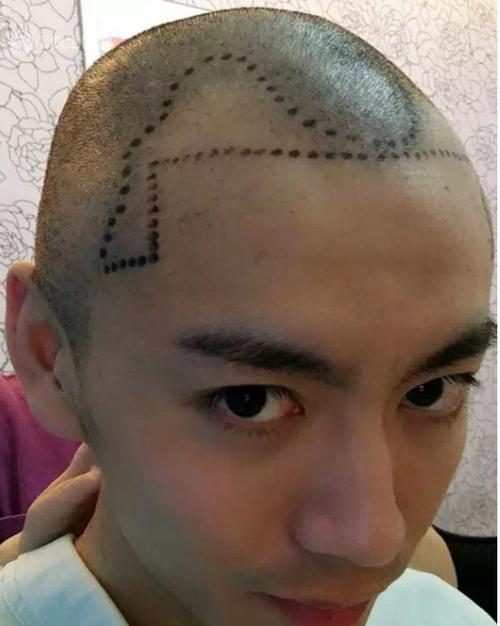 沈阳哪家植发医院能让发友更好的提高自身形象,需要多少费用?