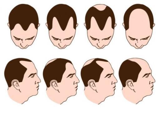 盘点深圳植发的正规医院,哪家植发技术最好?