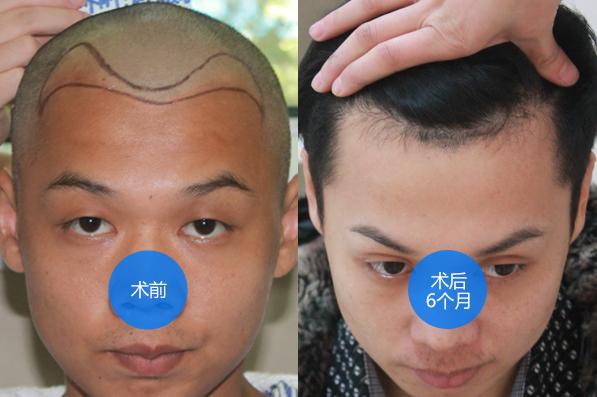 杭州时光发际线调整1500单位案例,看我术后六个月的效果图