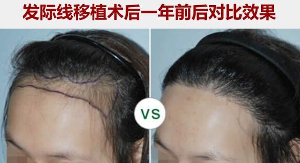 石家庄种头发技术好吗?来看看我在石家庄种植发际线1500单位效果