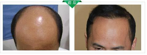 看我在杭州新生植发效果怎么样?植发有什么危害和后遗症吗?