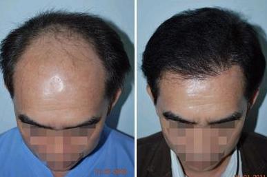 重庆植发多少钱,看我在重庆植发前额一年后效果怎么样