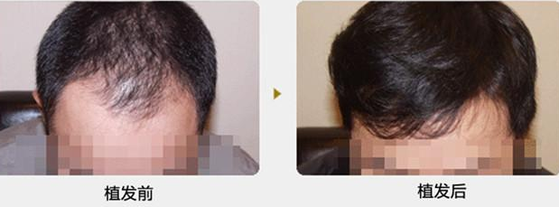 我选择在福州用植发手术来改善头顶前额稀疏,大家来看看效果怎么样