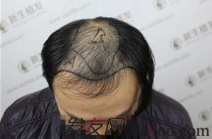 广州新生六级植发手术,大面积植发4700单位的术后效果