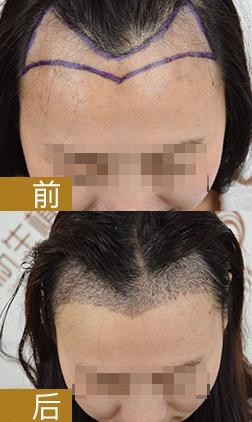 杭州新生植发2000单位,来看我的植发经历