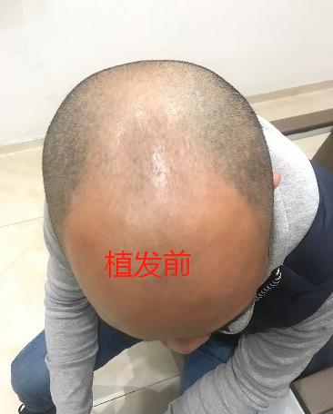 广州大麦微针植发3800单位,看4级脱发后的效果怎么样