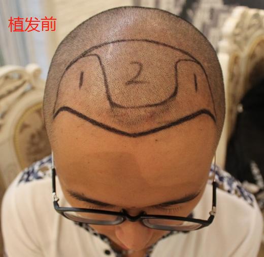 上海植发3400单位的我,看看在大麦微针植发后的效果怎么样