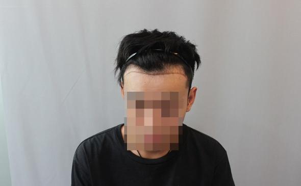 天津新发现发际线植发1500单位,看看术后恢复怎么样