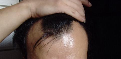 广州大麦微针植发医院植发3200单位,等待术后效果
