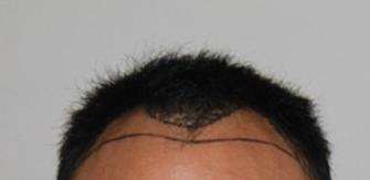 在上海雍禾种植发际线2300单位,一起来看一下我的术后恢复效果