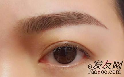 植眉几天后眉毛才能成活,术前需要注意什么