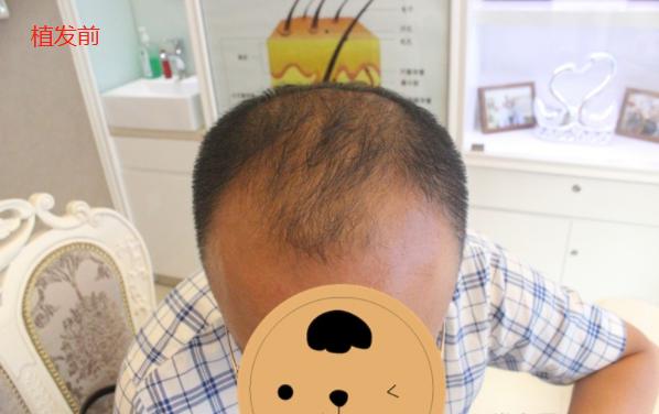 北京大麦微针植发3800单位真实经历分享,看看我的术后照片