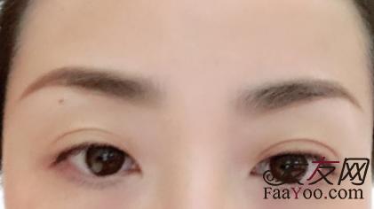 移植眉毛有什么危险,效果怎么样呢?