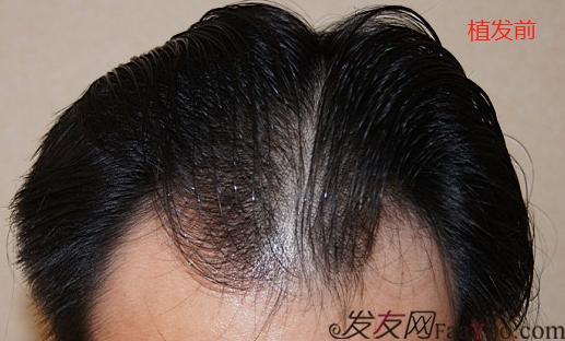 北京盛发园三级植发案例,植发8个小时术后效果