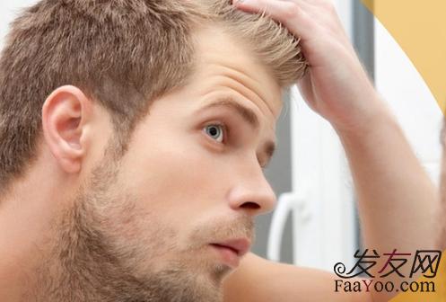 男性发际线后移怎么办,后移的前兆有哪些?