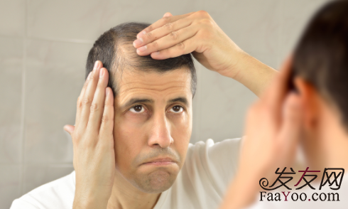 男性发际线后移主要是因为什么,应该怎么办?